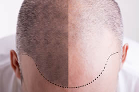 male hair loss treatments sydney