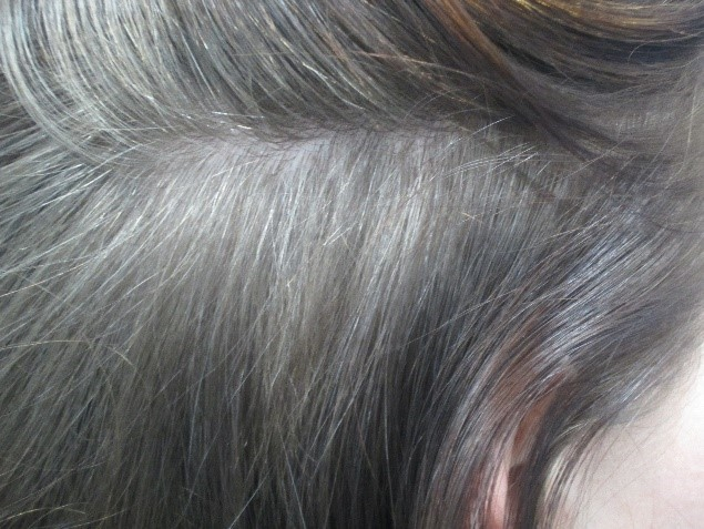 Alopecia-Areata-After
