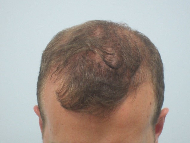 After: Male Pattern Thinning