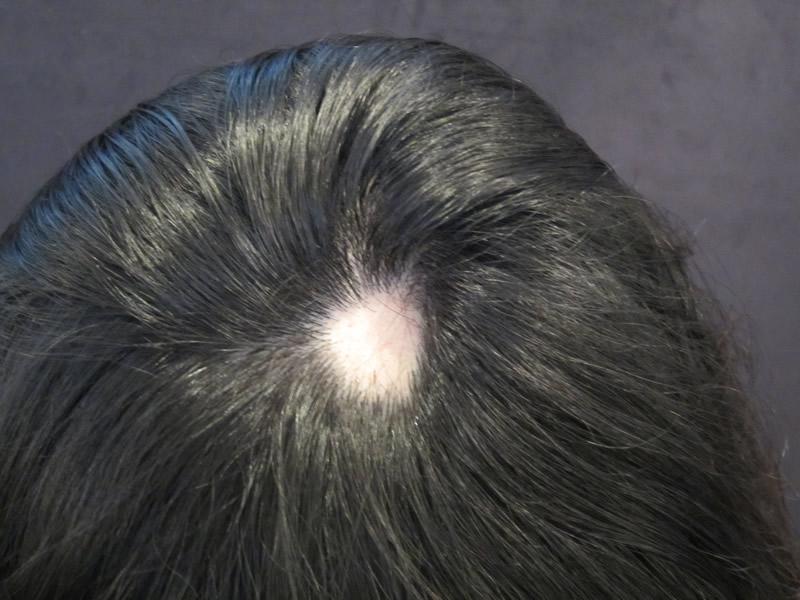 Before: Male Alopecia
