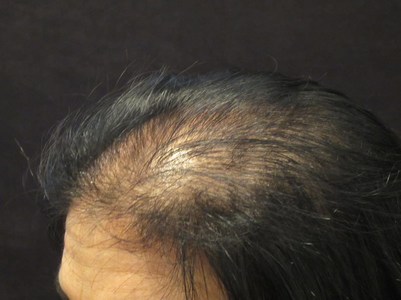 Before: Female Hair Loss