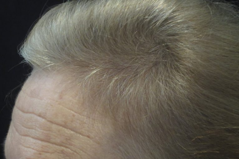 After: Men's Hair Loss