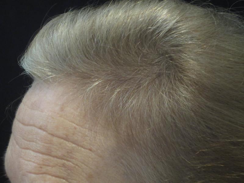 After: Men's Hair Loss