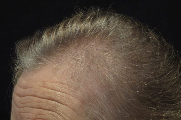 Before: Men's Hair Loss